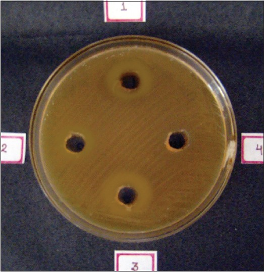 Figure 1: Demonstrating the zones of inhibition produced by 20% ethanolic extract (well no. 1), 5% ethanolic extract (well no. 2), 0.2% chlorhexidine (well no. 3) and distilled water (well no. 4) against Lactobacillus <i>acidophilus</i>