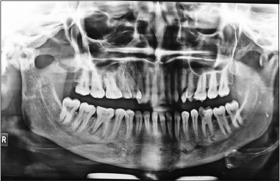 Figure 2: Orthopantomogram showing bilateral taurodontism in mandibular third molars and unilateral taurodontism in mandibular second molar